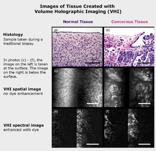 Images of tissue created with volume holographic imaging